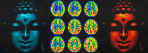 Brain imagery